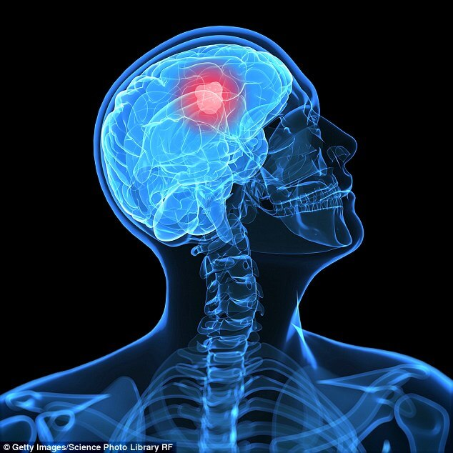 Brain Cancer from Mobile Phones